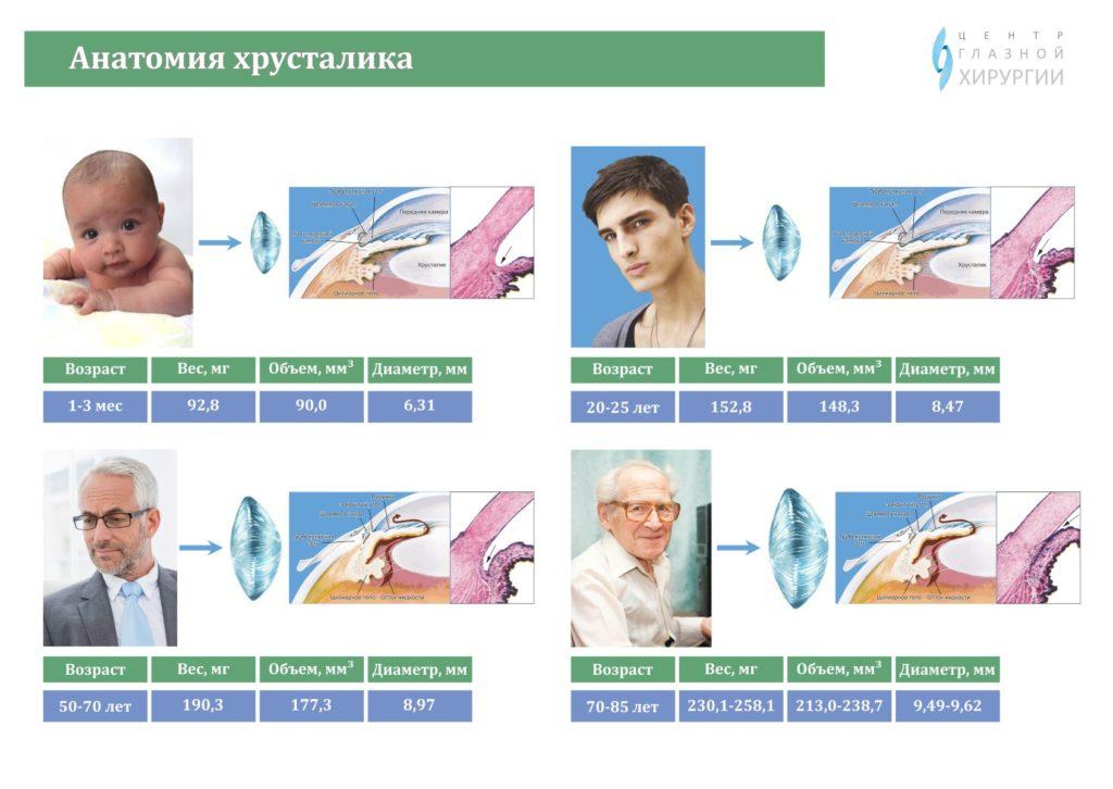 Удаление катаракты в казани